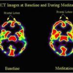 Cerveau méditants